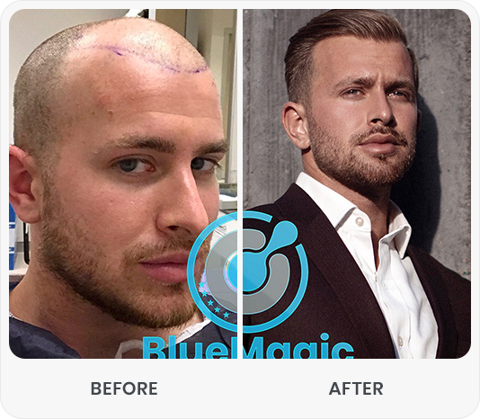 After-Before